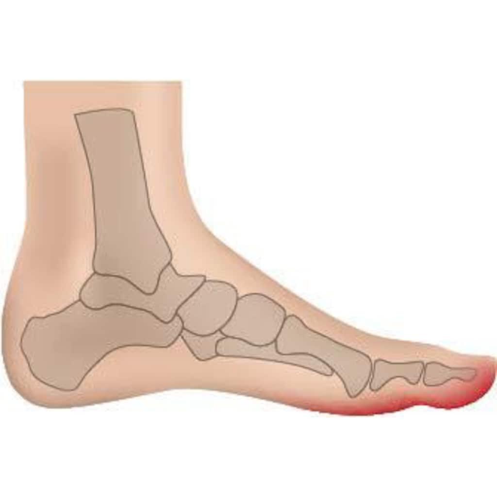 Fußgut Überbeinschutz, mit Gelpolster, lindert Schmerzen bei Hallux Valgus